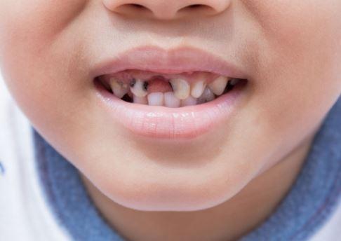 phòng và điều trị bệnh sâu răng ở trẻ